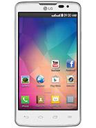 Imagine reprezentativa mica LG L60 Dual